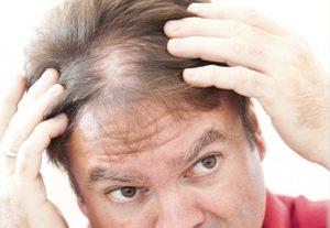 Снится выпадение волос на голове