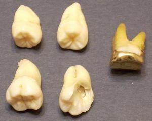 Трактовка снов про зубы