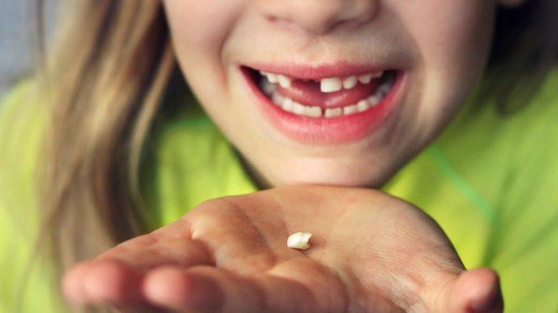 К чему видеть во сне сон про гнилые зубы