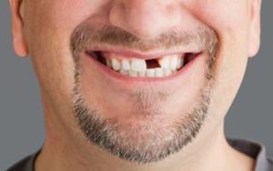 Значение сна про гнилые зубы